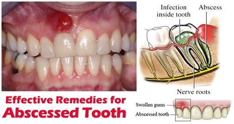 Home Remedies For Abscess Tooth by Accueil Recours Pour Abc 232 S Dentaire Rapide Rem 232 Des