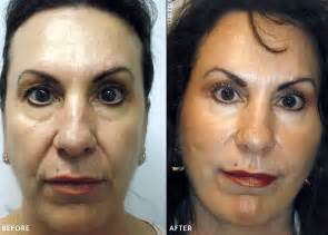 before and photos threadlift before after pictures aesthetica med spa