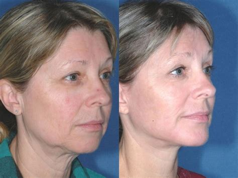 lower face and neck lift chin implants chaign chin augmentation before after il