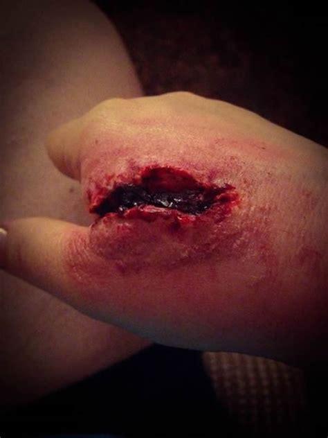 imagenes de heridas asquerosas clasificaci 243 n de heridas primeros auxilios steph o