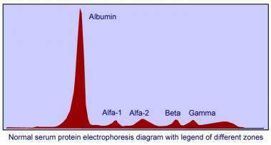 s protein electrophoresis interpretation serum protein electrophoresis reference range