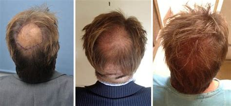 men long hair cover bald spot transplantul de par al vedetei bbc martin roberts hair