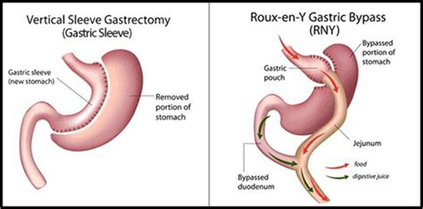 roux en y supplements gastric sleeve and gastric bypass surgery compared