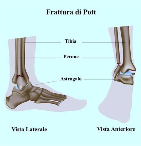 dolore al malleolo interno dolore alla caviglia esterno o interno sinistra o destra