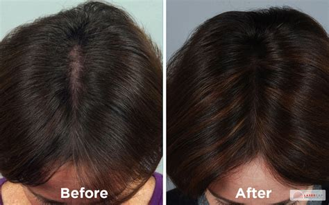 laser light therapy for hair laser therapy la hair restoration