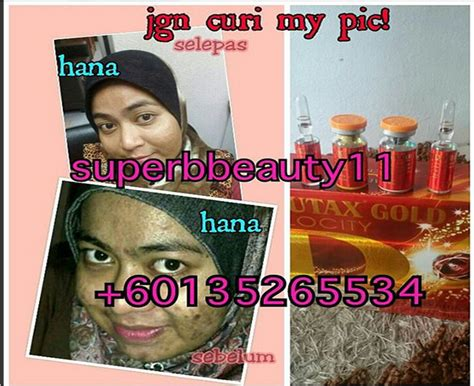 Glutax Gold every deserves to be pretty 4 testimoni glutax gold