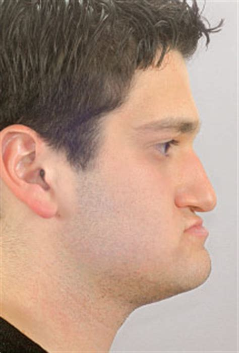haircuts for protruding chin image gallery prominent jaw