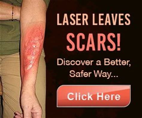 most effective tattoo removal method home removal removal methods