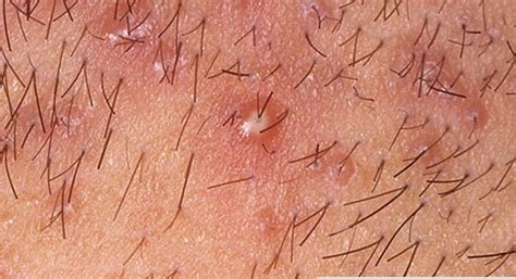 what makes old womens pubic hair itch at times pus filled bump on scalp pictures photos