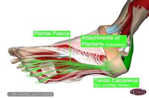 plantar fasciitis or heel spurs symptoms and treatment