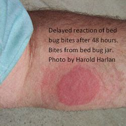 bed bug itch relief bug bite itch relief home remedies