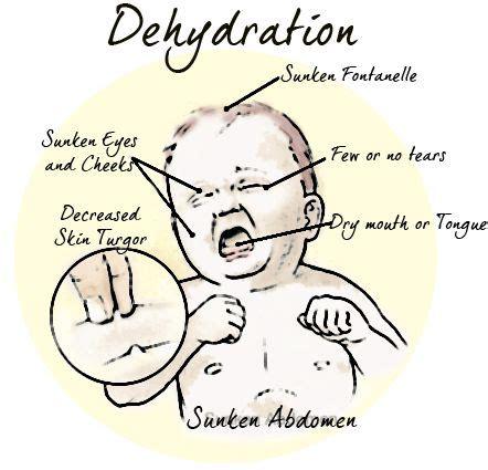 dehydration in infants dehydration symptoms in children dehydration in children