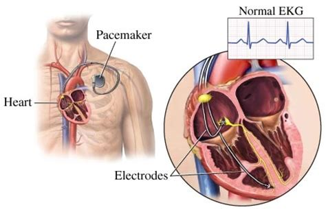 Pacemaker for slow heart rhythm restores life expectancy Pacemaker Surgery
