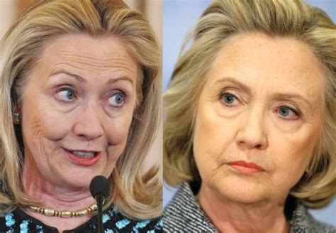 Did Hillary Clinton Have Plastic Surgery 2015 | celebrityhealthfitness com