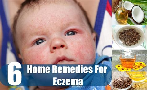 6 effective home remedies for eczema in children
