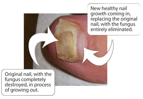 nail bed fungus foot essential blog may 2011