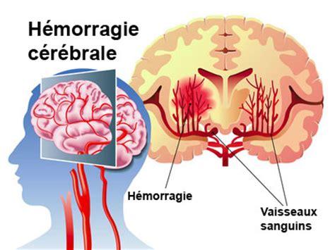 emorragia interna cause h 233 morragie c 233 r 233 brale avc h 233 morragique