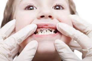 facts childhood tooth decay pediatric dentistry
