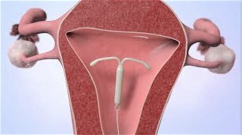 how to remove iud paragaurd morena at home