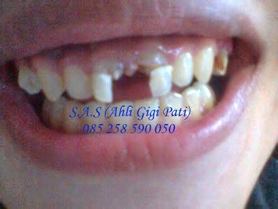 Biaya Pemutihan Gigi Di Jogja gigi palsu lepas pasang bagian depan s a s ahli gigi jogja