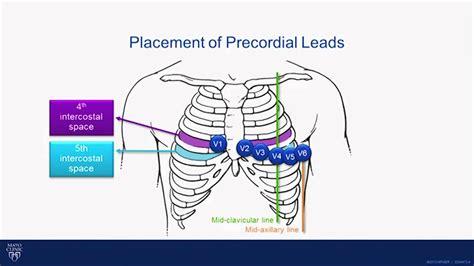 pediatric lead placement diagram leads interpretation images