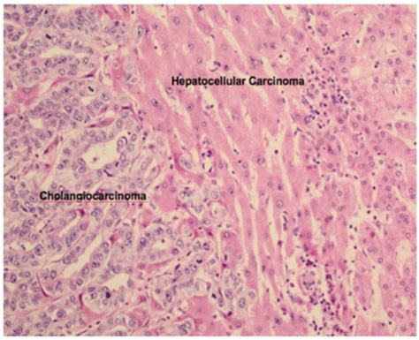 pattern analysis in histopathology pathology of combined hepatocellular carcinoma cholangi