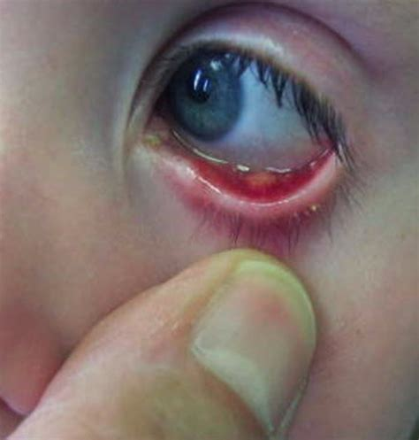 What Is A Stye In The Eye Pictures stye eye causes symptoms pictures treatment