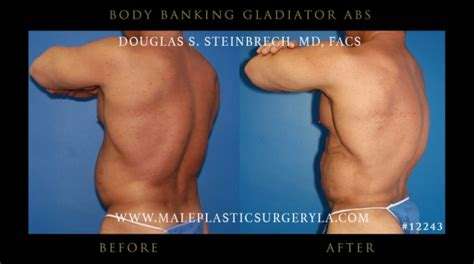 Did Banks Liposuction by Gladiator Abs Before And After Photos In Los Angeles