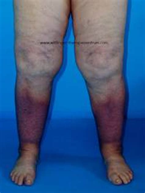 leg swelling post c section wittlinger lymphedema clinic venous stasis ulcer