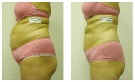 Liposuction Or Weight Loss by Lipo Laser F A Q S