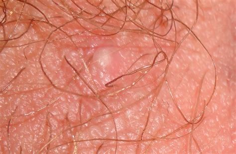 red pubic hiar photos what does bump on pubic hair look like good morning