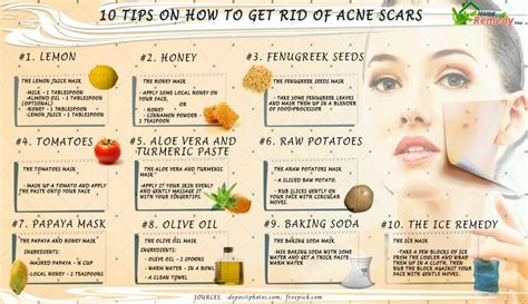 Get Rid Of Acne by 10 Tips On How To Get Rid Of Acne Scars Home Remedies