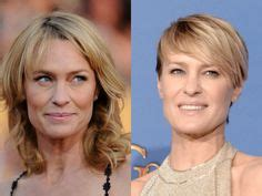 robin wright nose job robin wright face plastic surgery before and after botox
