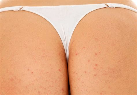 bolle sul sedere pimples on buttocks how to get rid of them best acne