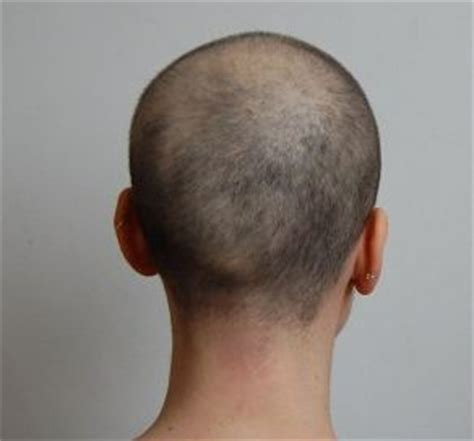 hair loss after chemotherapy hair regrowth after chemo pictures of post chemotherapy