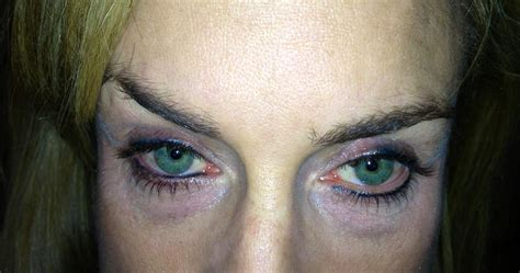 eyeliner tattoo gone wrong permanent makeup gone wrong