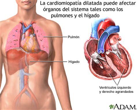 infarto miocardio cause sintomi emergenza e cure miocardiopat 237 a dilatada medlineplus enciclopedia m 233 dica