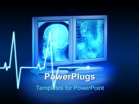 radiology powerpoint template powerpoint template large x rays viewed on hospital high end monitors with wave in