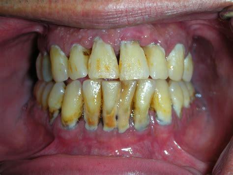 What Is Root Bridge by Periodontitis Periodontist Implantologist George