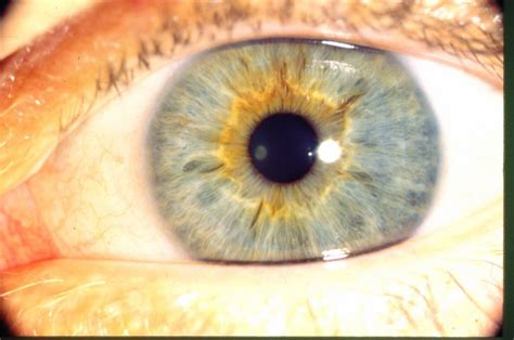 iridology nutrition and cognition research
