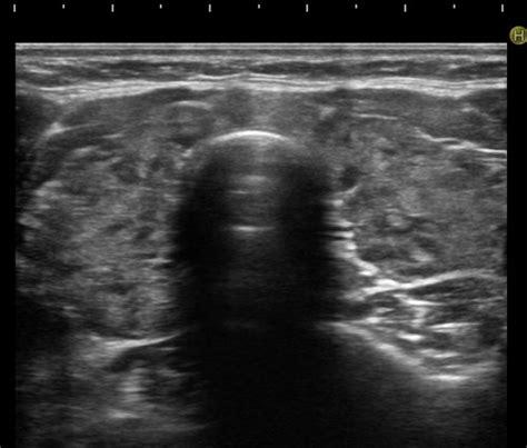 alimentazione giusta nella tiroidite di hashimoto la tiroidite 232 un processo infiammatorio della tiroide