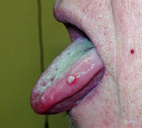 what color should my tongue be pimple on tongue symptoms causes remedies tip white