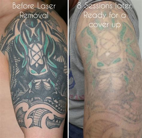 can tattoos be fully removed laser removal birmingham uk