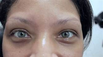 eye color surgery wrong and eye color change surgery eligibility