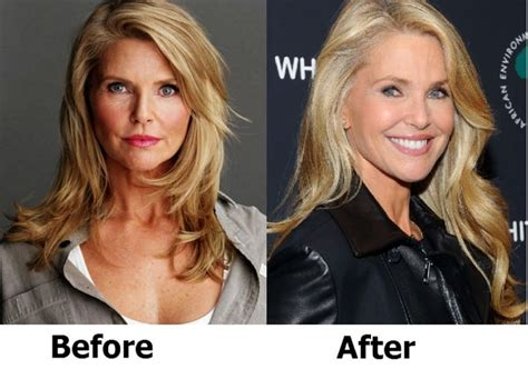 Christie Brinkley Gets Emergency Surgery by 7 Best Images About Before And After On