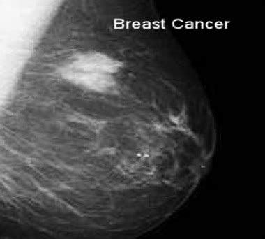 Normal Breast Ultrasound Report Template Breast Cancer Oncologist And The Team Moose And Doc