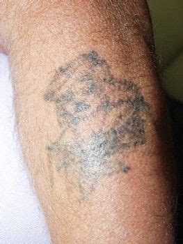 tattoo vanish near me 1000 images about vanish laser tattoo removal and skin