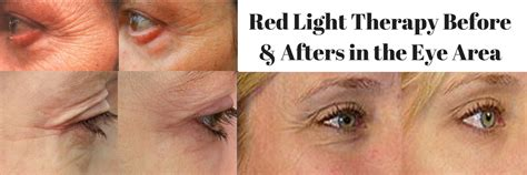 light therapy for wrinkles light therapy reduce wrinkles age spots acne more