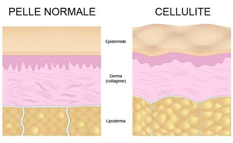 cellulite e alimentazione curare ed eliminare la cellulite con la corretta