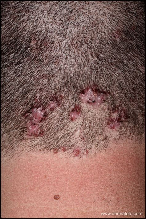 folliculitis treatment folliculitis decalvans atlas of dermatologic images dermafoto